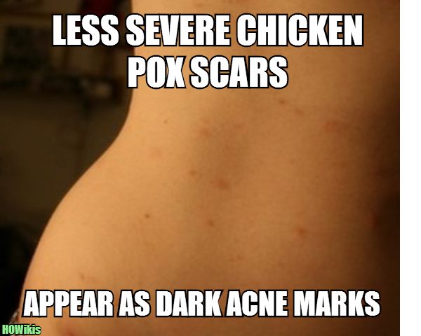 how to clear chicken pox scars