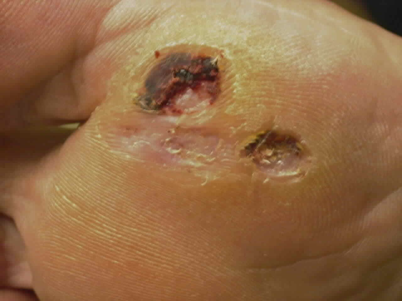 Natural Cure For Warts