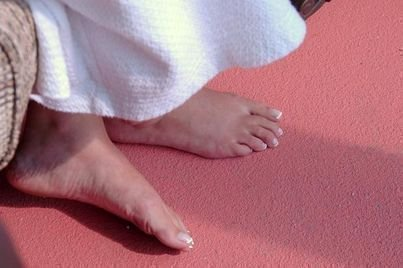how to get rid of foot calluses naturally